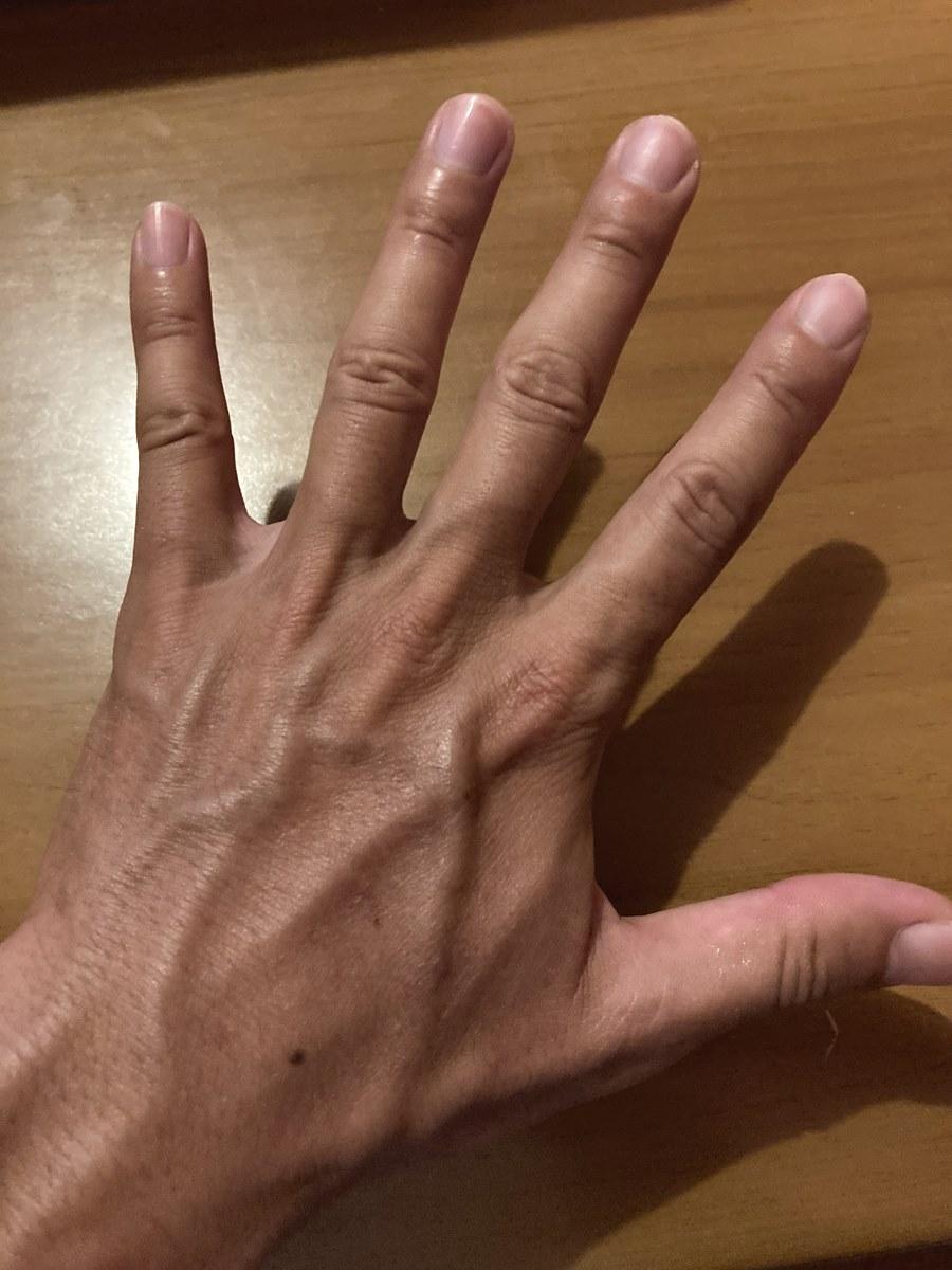 ウニのトゲに刺されていない普通の手