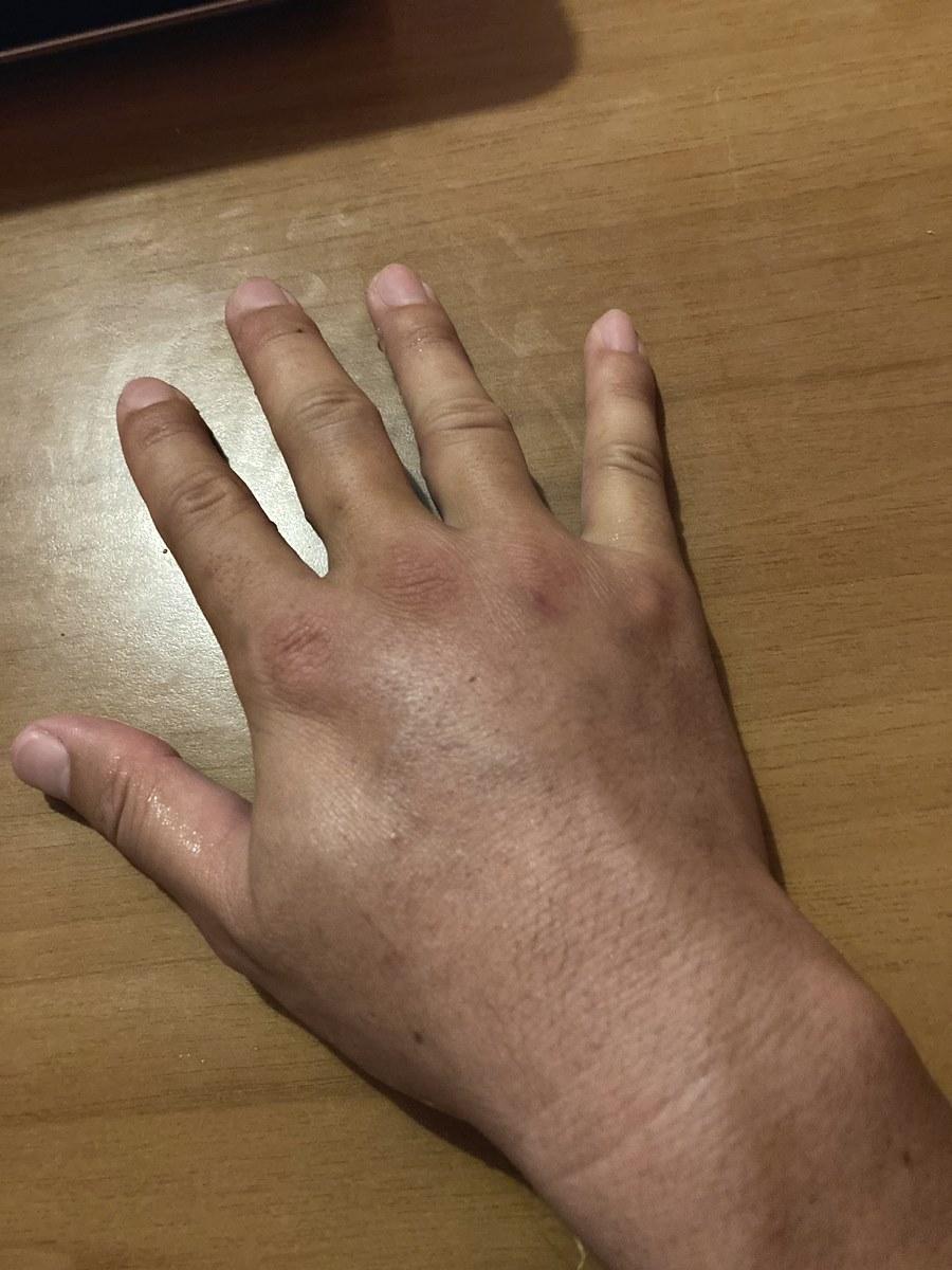ウニのトゲが手に刺さって腫れた